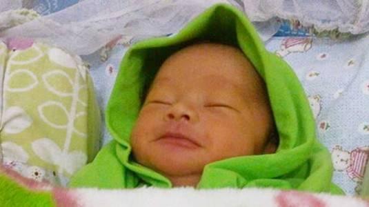Jangan Panik Menghadapi Bayi Kuning