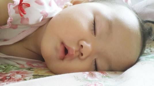 Cara Mengatasi Ruam ASI pada Bayi 1 Bulan