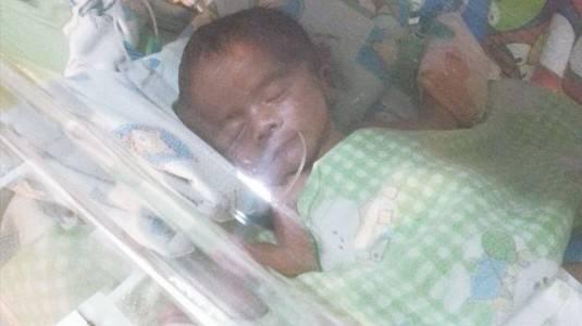 Waspadai ROP Terhadap Bayi Prematur