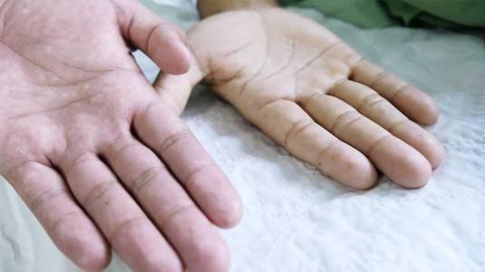 Pengertian, Penyebab, Gejala, Pengobatan, dan Pencegahan Anemia
