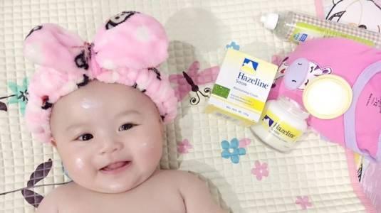 Tips Menghilangkan Bintik-Bintik Merah Di Muka Bayi
