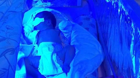 Home Theraphy untuk Bilirubin Tinggi pada Bayi