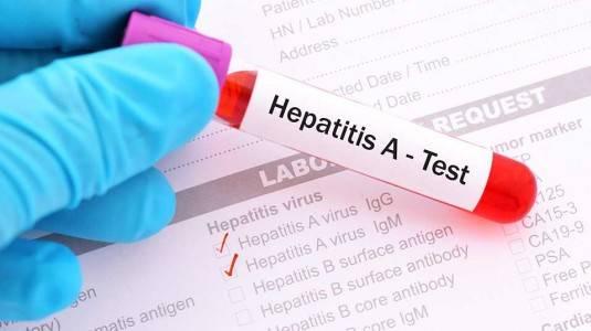 Gejala Hepatitis A Awal, Lanjutan dan Parah yang Perlu Diwaspadai