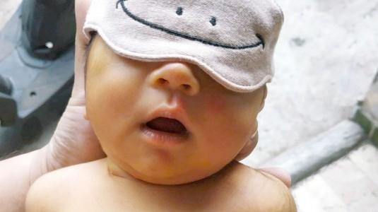 Jaundice pada Newborn