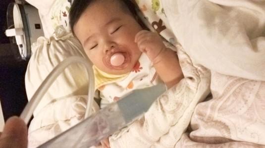 Mengatasi Pilek pada Bayi 5 Bulan