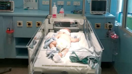 Bayi 1 Bulan Masih Kuning?