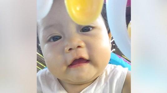 Botol Susu Anti Kolik untuk Tumbuh Kembang Optimal Anak