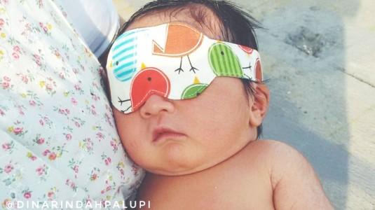 Atasi Permasalahan Kulit pada Bayi dengan Skincare Alami