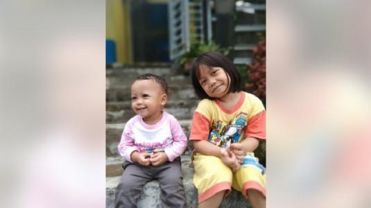 Baby Wipes Berbahan Xylitol Ramah Bagi Kesehatan Kulit Si Kecil