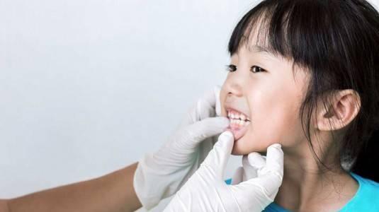 Masalah Kesehatan Gigi Yang Sering Terjadi Pada Anak