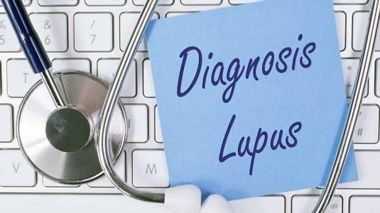 Risiko Berbahaya Terdiagnosis Lupus Saat Hamil