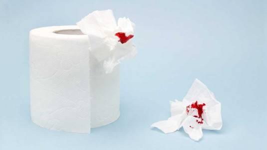 Darah Menstruasi Sedikit? Mungkin Ini Penyebabnya!