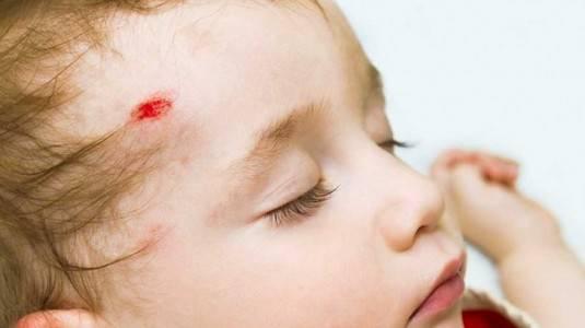 Pertolongan Pertama Saat Kepala Bayi Terbentur