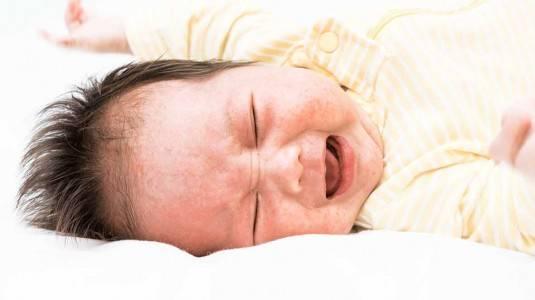 Gejala dan Pengobatan Alergi pada Bayi