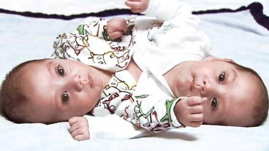 Bayi Kembar Siam, Dapat Dicegah atau Tidak Ya?