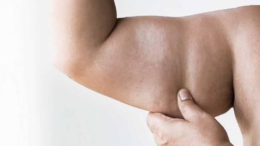 Bagaimana Gejala dan Penanganan Resistensi Insulin pada Anak?