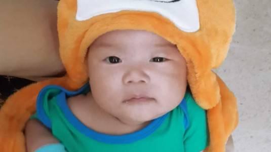 Kotoran Mata Berlebih pada Bayi