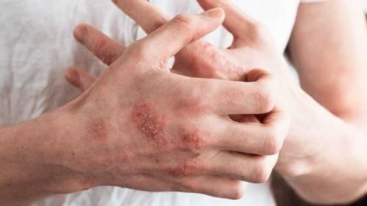 Dermatitis Kontak Iritan Karena Sabun Cuci Botol Mengandung SLS