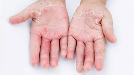 Mengatasi Dermatitis Kontak pada Ibu Hamil