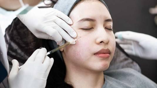 Bolehkah Botox and Filler untuk Ibu Hamil dan Menyusui?