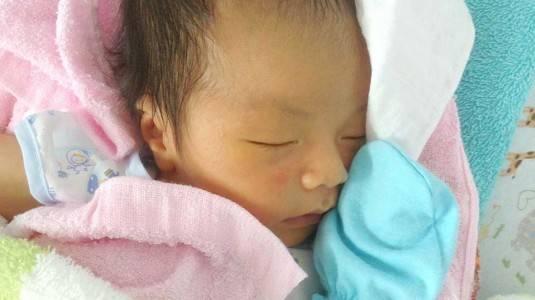 Ciri-ciri Jaundice pada Bayi Baru Lahir