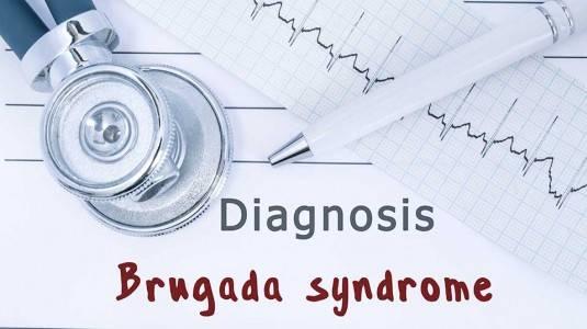 Sindrom Brugada: Gangguan Serius Terkait Irama Jantung