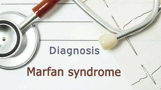 Sindrom Marfan: Kelainan Genetik pada Jaringan Ikat Manusia