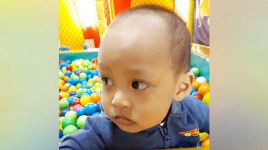 Kepala Bayi Peyang, Adakah Solusinya?