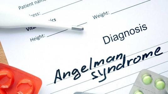 Sindrom Angelman, Kelainan Genetik dengan Gejala Hiperaktif dan Ceria