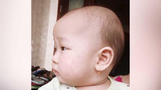 Pengalaman Mom Sheren Menghadapi Dermatitis Atopik