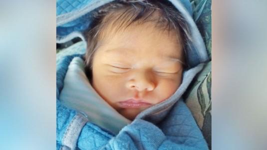 Mengenal Breastfeeding Jaundice: Kuning pada Baby A