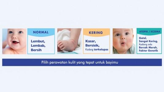 Bagaimana Cara Mengenali Jenis Kulit Bayiku?