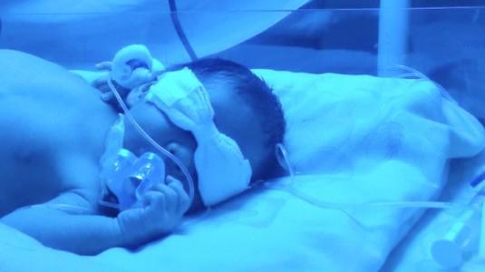 Pengalaman Saat si Kecil Harus Diteraphy Sinar (Fototerapy)