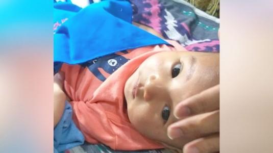 Pengalaman Sunat Bayi Usia 3,5 Bulan