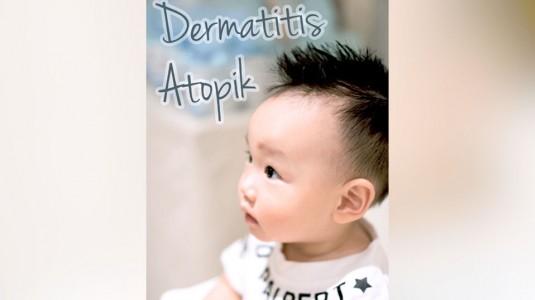 Anakku Mengalami Dermatitis Atopik