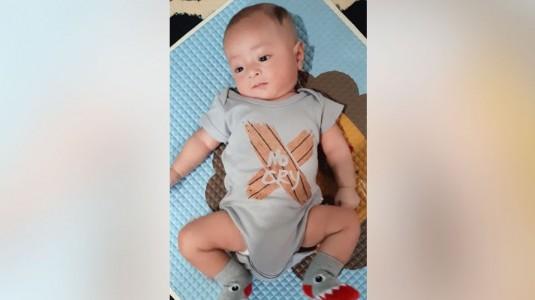 Bayiku Bentuk Kakinya O, Normalkah?