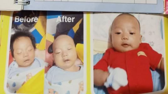 """Hampir 4 Bulan Anakku Alami """"Diagnosis"""" yang Tidak Jelas"""