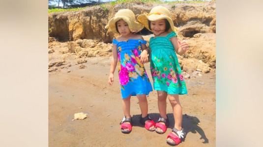 Pentingnya Penggunaan Sunblock pada Kulit Anak