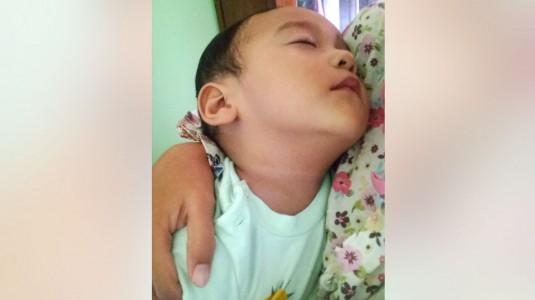 Kenali Tanda Dehidrasi Ketika Anak Lemas dan Tidak Mau Makan!