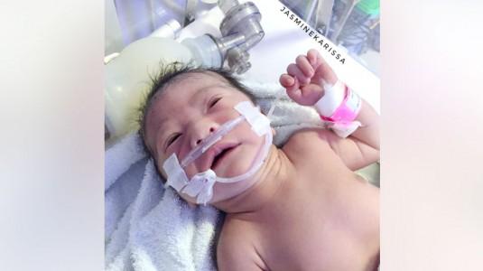TTN, Gangguan Pernafasan yang Menyebabkan Bayiku Dirawat di PERINA