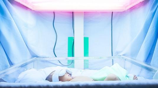 Jaundice/Kuning pada Bayi Baru Lahir