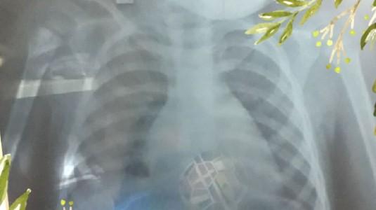 Vonis TBC di Usia si Kecil 1 Tahun