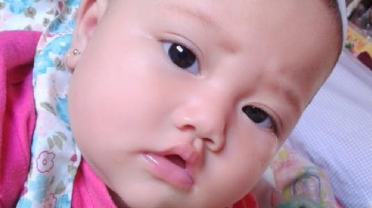 Kenali Gelaja Alergi Susu Sapi dan Intoleransi Laktosa Pada Si Kecil