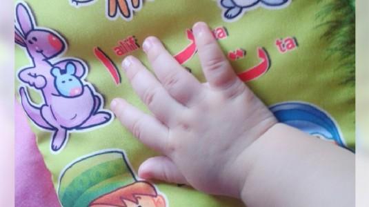 Cantengan Yang Dialami Anakku, Apa Saja Penanganannya?