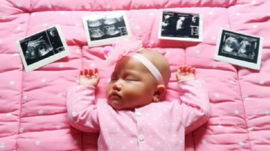 Jangan Sepelekan Pemeriksaan USG Saat Kehamilan, Ini Alasannya!