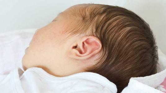 Infeksi Telinga pada Bayi, Bagaimana Mengatasinya?