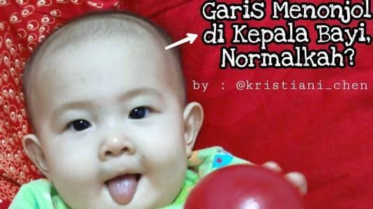 Garis Menonjol di Kepala Bayi, Normalkah?